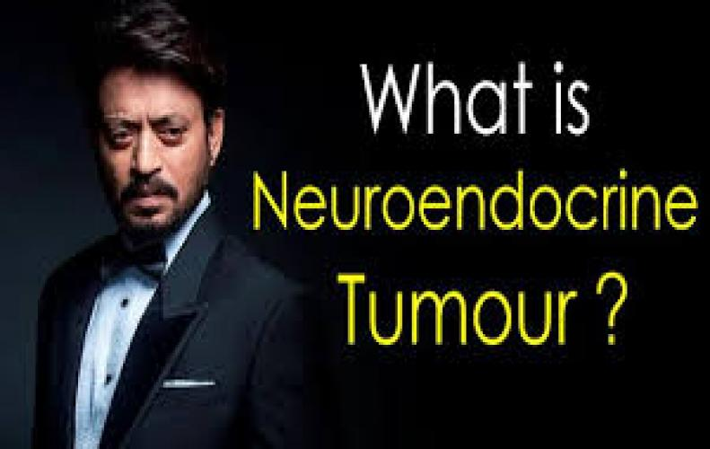 Irrfan Khan diagnosed with NeuroEndocrine tumour by Doctor Sumitra Rawat in Ganga Ram Hospital.