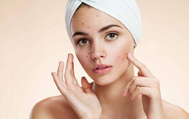 Skin Problems in the Summers and ways to deal with them