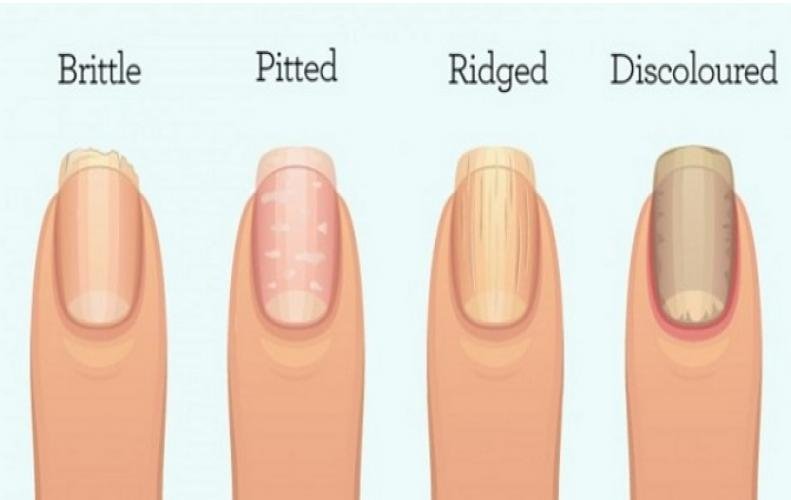 Know Your Health Status with these Fingernail Symptoms of illness