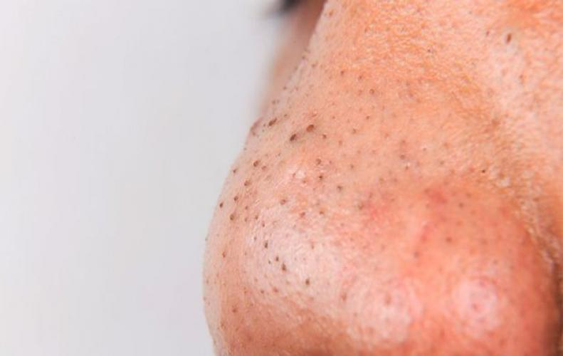 Natural Tricks to Prevent Blackheads Permanently