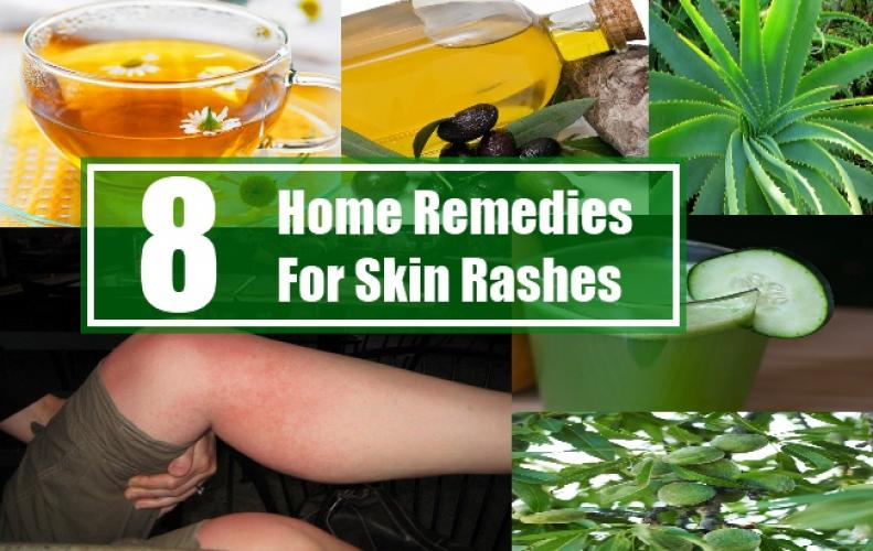 Natural Home Remedies to Get Rid of Skin Rashes