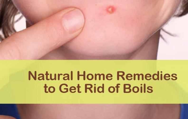 Natural Home Remedies to Overcome Painful Heat Boils