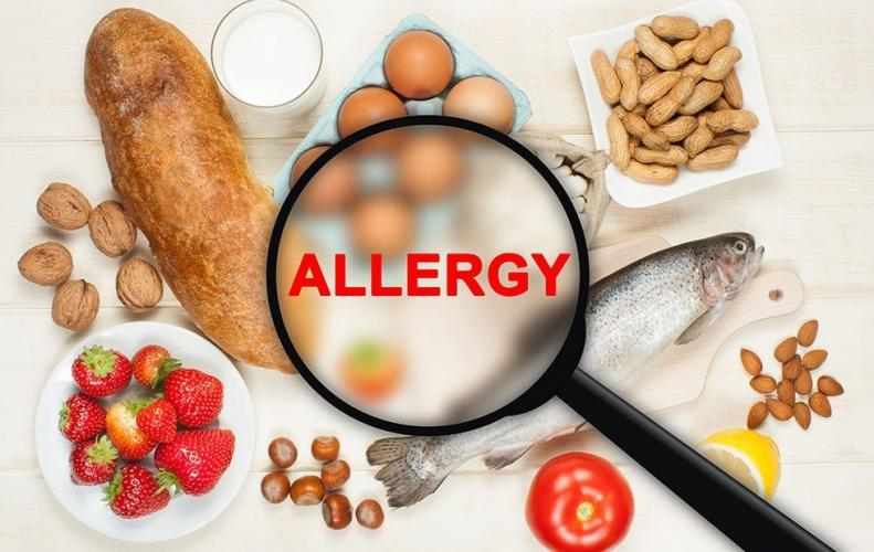 Most Common Food Allergies that You Might Face in Daily Life