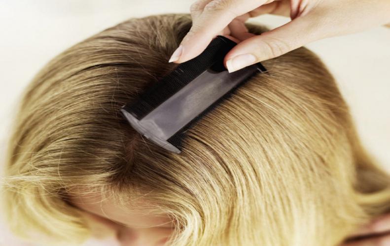 बालो में जुओं से निजात पाने के बहुत आसान तरीके...