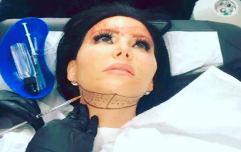 जानिए इस महिला की कहानी, खूबसूरत दिखने के लिए करवाई चेहरे की 200 से ज्यादा सर्जरी...