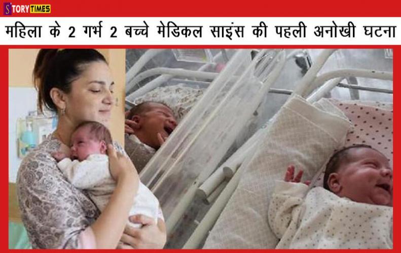 महिला के 2 गर्भ 2 बच्चे मेडिकल साइंस की पहली अनोखी घटना A Lady Got two Fetus and Two Child In Hindi