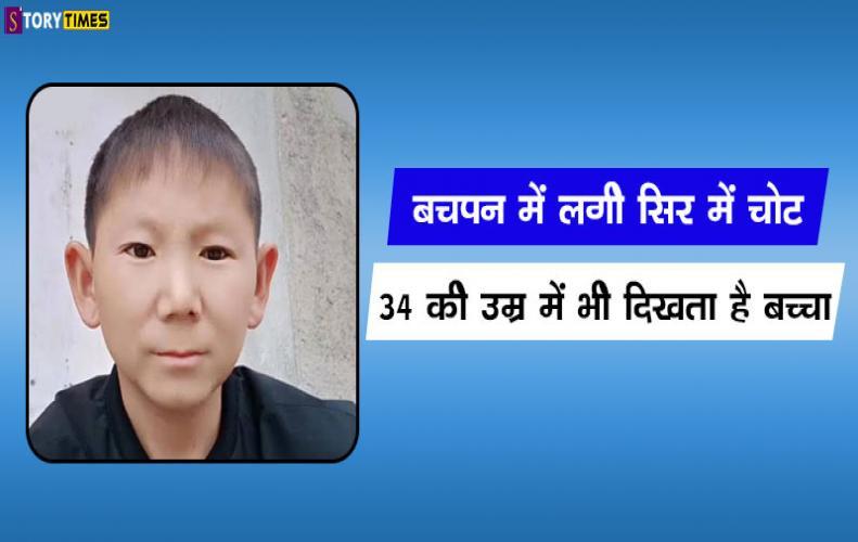 बचपन में लगी सिर में चोट 34 की उम्र में भी दिखता है बच्चा | Zhu Shengkai Injury in Hindi